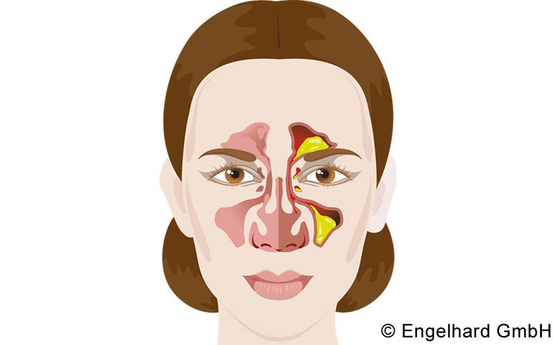 Symptome bedürfnisorientiert behandeln