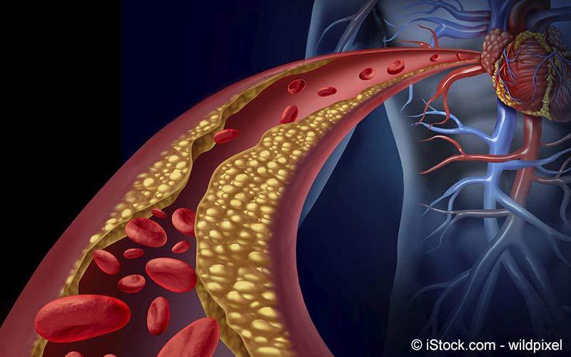 Arteriosklerose (Arterienverkalkung) | Meine Gesundheit