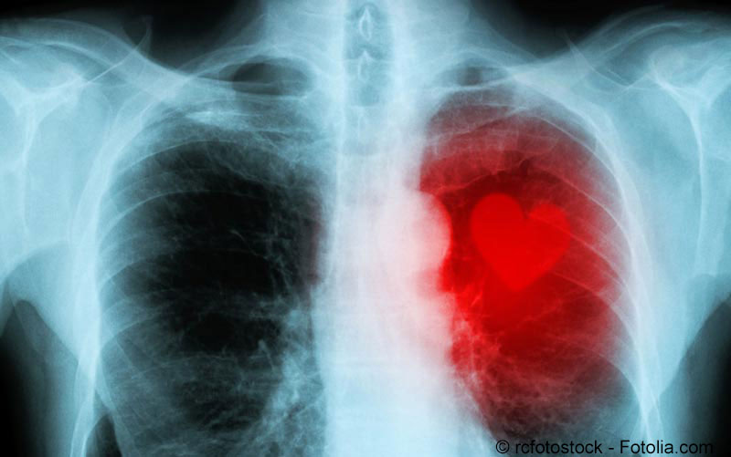 Herzmuskelentzündung (Myokarditis)
