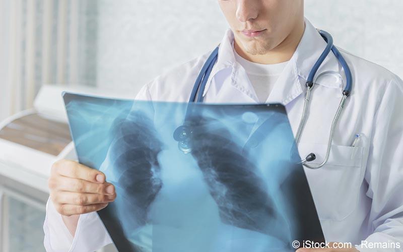 Lungenultraschall