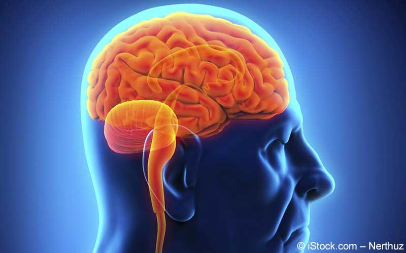 Parkinson Gehirn