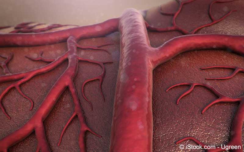 Venenentzündung
