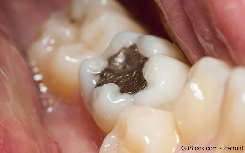 Mundfäule Symptome Ursachen Behandlung Meine Gesundheit