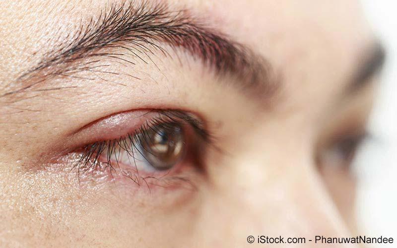Entzündung der Augenlidränder