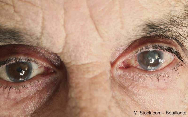 Älterer Herr mit Linsentrübung