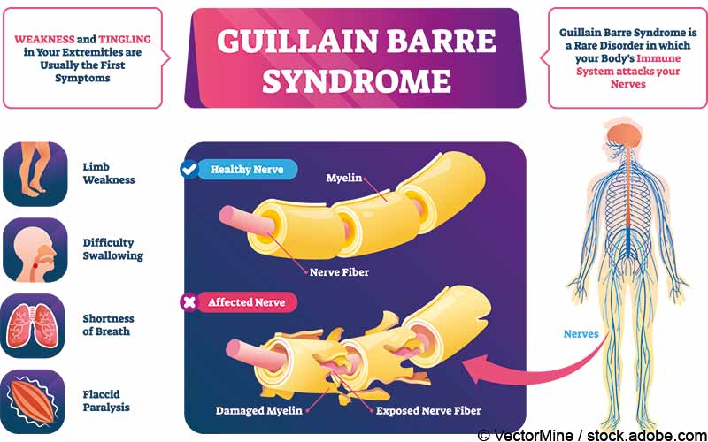 Guillain Barre Syndrom