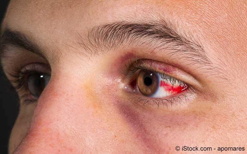 Hämatom am Auge