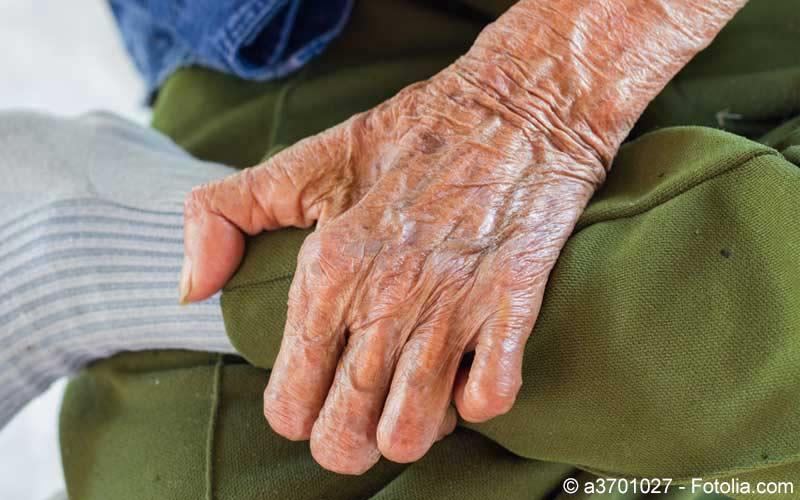 Älterer Herr mit Lepra