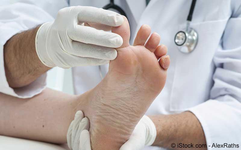 Arzt untersucht Fußzeh