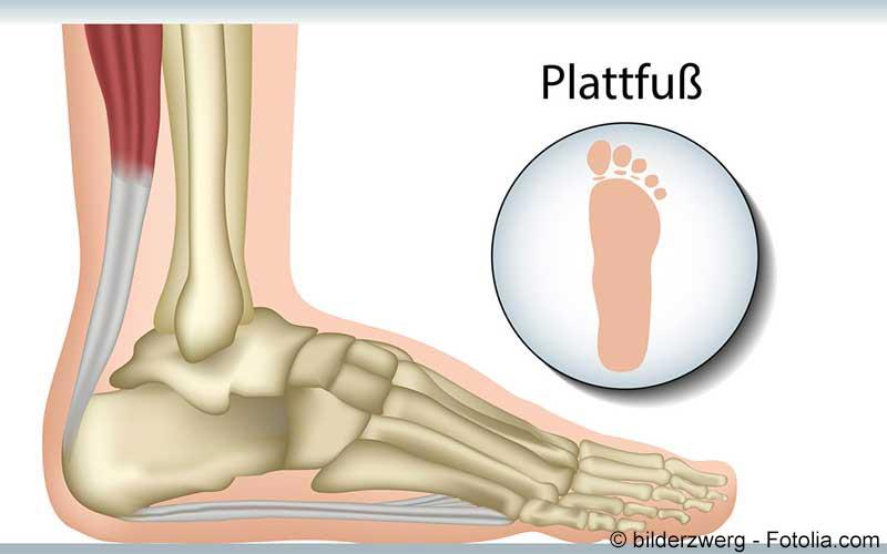 Plattfuss