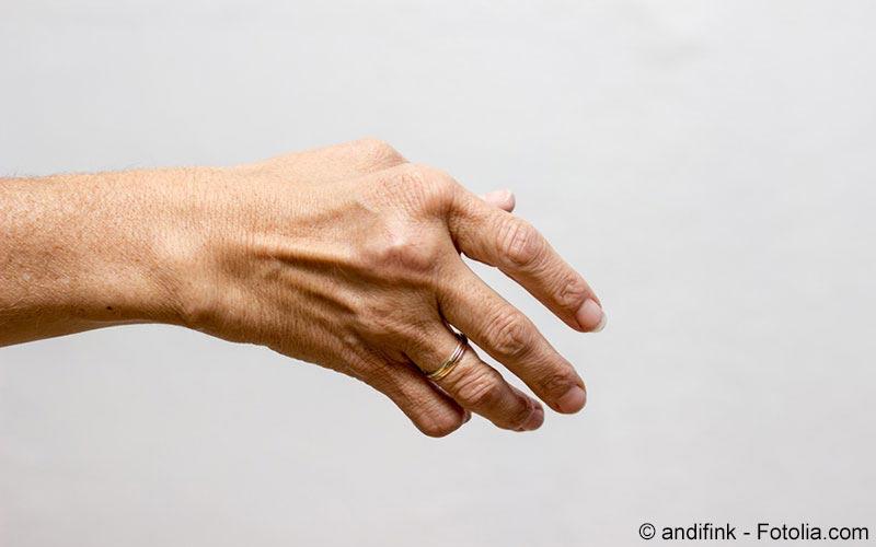 Karpaltunnelsyndrom - Handschmerzen