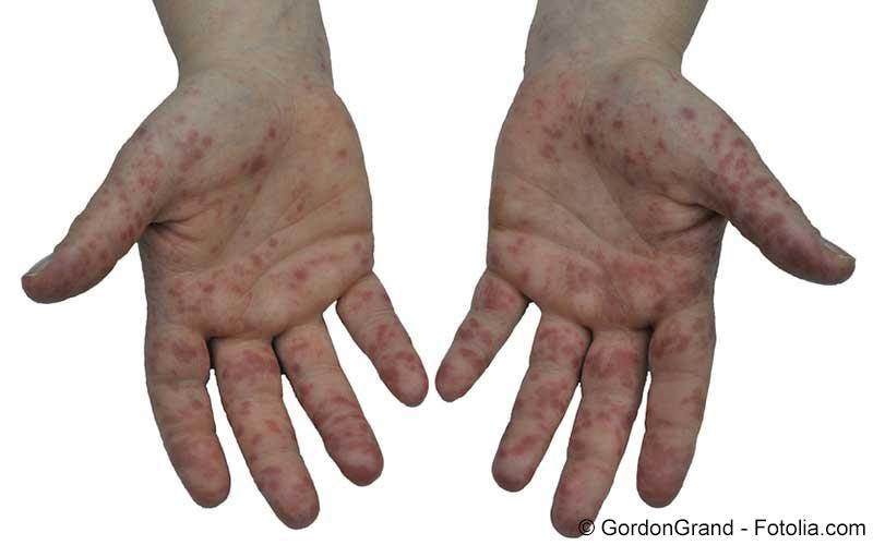 Hautausschlagan den Händen
