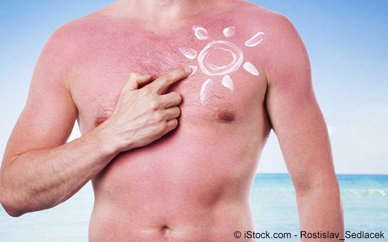 Sonnenbrand am Oberkörper